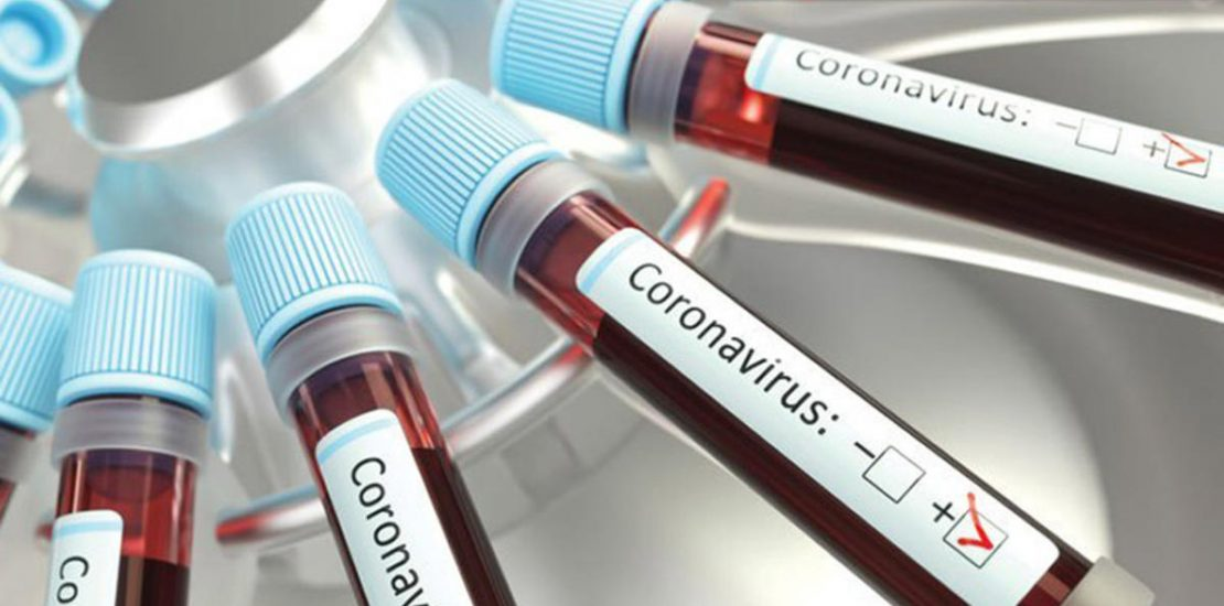 Over 10,000 volunteer for Covid-19 vaccine trial in UAE